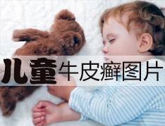 儿童患有牛皮癣应该怎么办