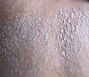 牛皮癣护理皮肤怎么做