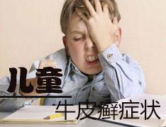 幼儿患银屑病的症状