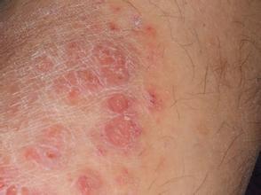 银屑病的早期症状是怎么样的呢